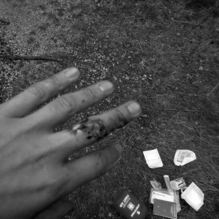 I palec rozwalony do kości.